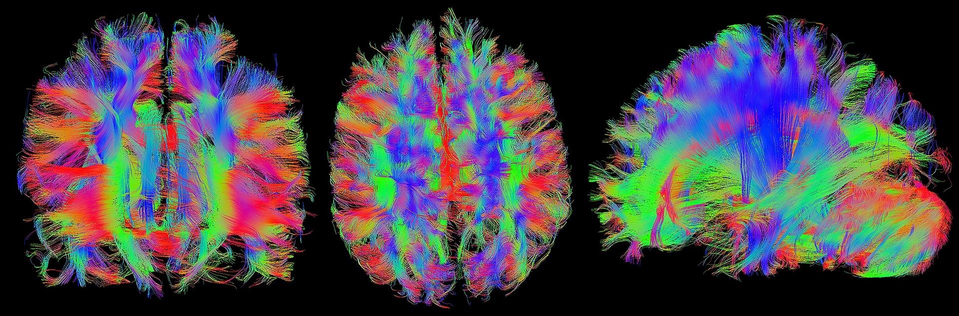 brain-1728449_1920.jpg