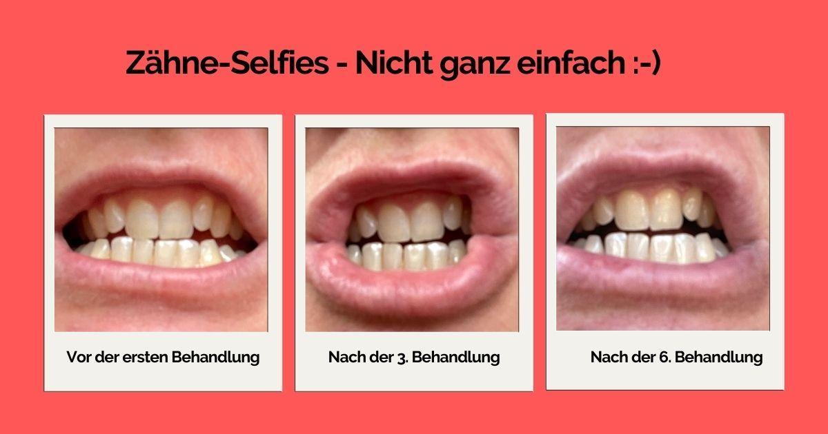 Zaehne_smilepen.jpg