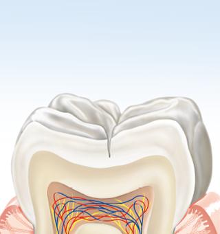 Zahn mit kleinen weissen Flecken im Zahnschmelz