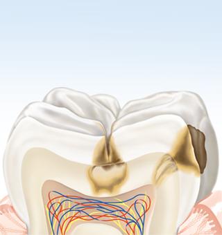 Zahn mit Karies im fortgeschrittenen Stadium