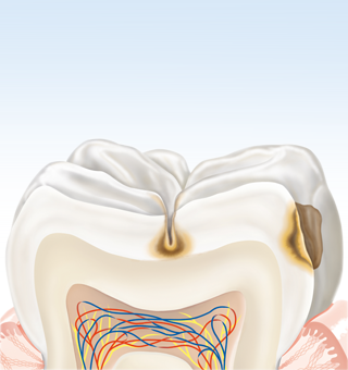 Zahn im Karies-Prozess