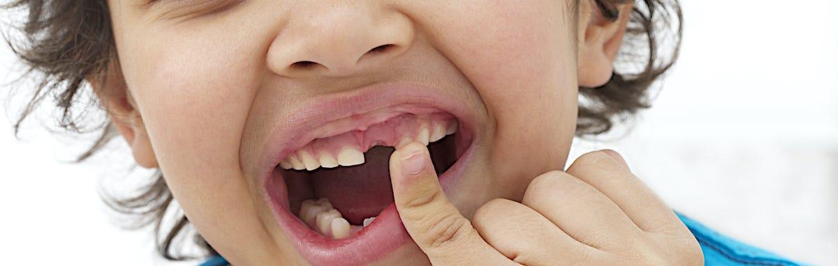 Un niño mostrando su diente y que necesita ir al dentista