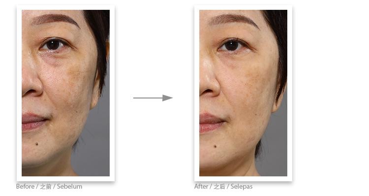 Collagen ball testimonial 5