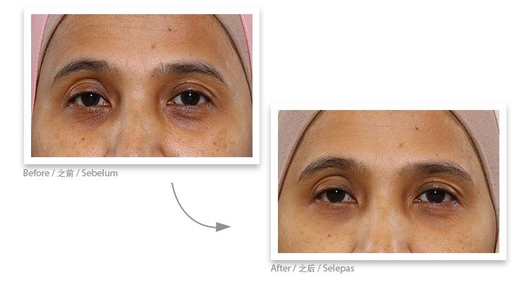 Collagen ball testimonial 6