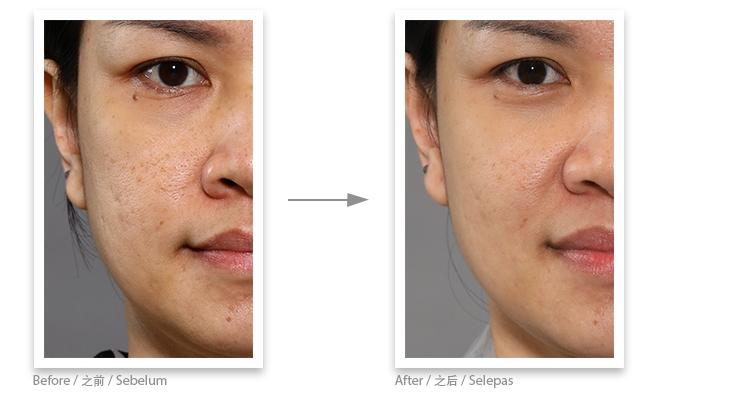 Collagen ball testimonial 2